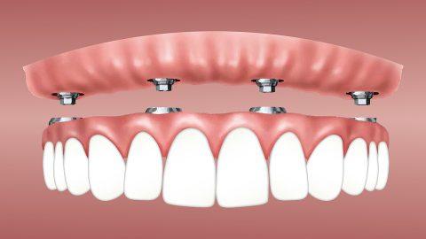 植牙會是未來老年人的大需求