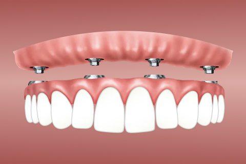 植牙手術有哪些步驟? 會很恐怖嗎